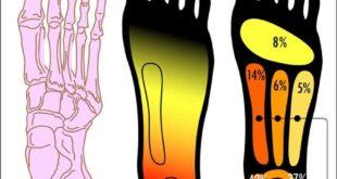Plantar Fasciitis Pain Zones