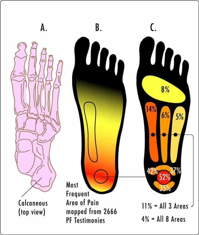 15d3a5f780d Plantar Fasciitis: A Hiker's Guide to Heel Pain - Section Hikers ...