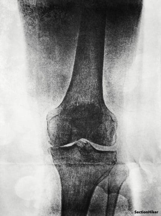 Initial x-ray of my right knee. There's no much cartiledge in there.