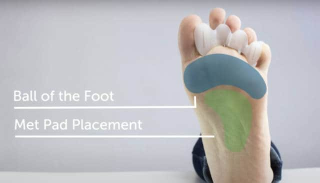 Proper met pad placement is important to relieve stress on the heads of the metatarsal bones